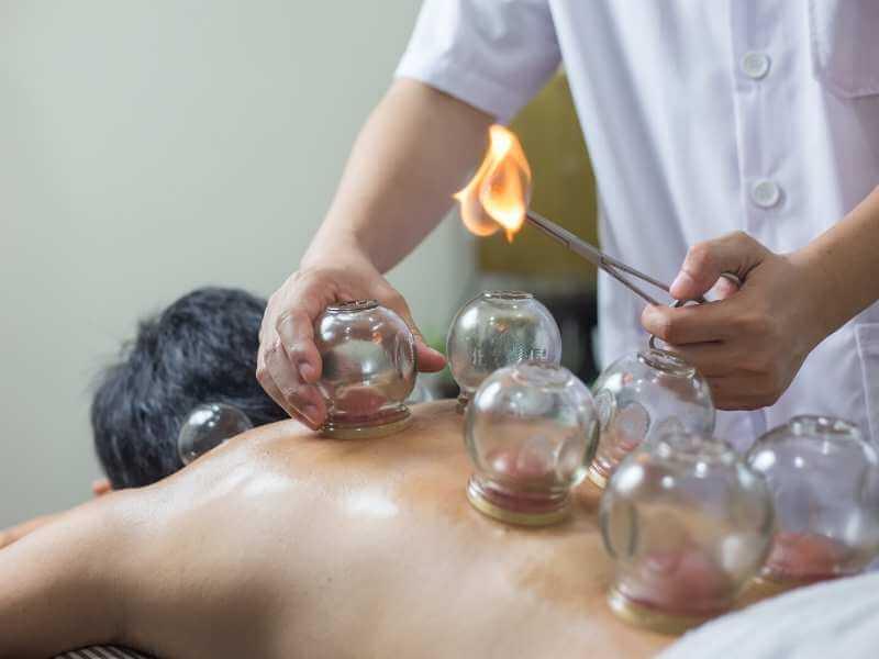 Hombre recibiendo masaje con ventosas chino mientras el terapeuta introduce fuego en una copa.