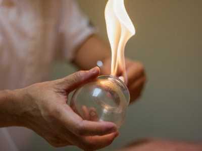 Terapeuta creando el efecto de vacío en copa de cristal con fuego para el masaje.