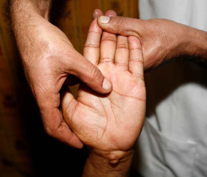 Masajista realizando acupresión al centro de la palma de la mano de un paciente de tratamiento de reflexología en las manos.